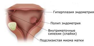 atroficheskie-izmeneniya-vlagalisha