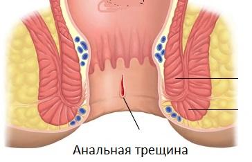 analnih-treshin-v