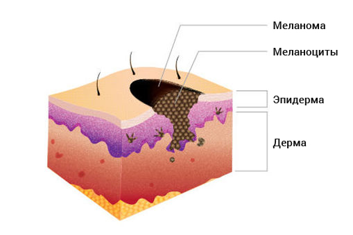 melanoma cancer research paper Melanoma is a cancer that begins in the melanocytes – the cells that produce the skin coloring or pigment known as melanin basal and squamous cell skin cancers are.