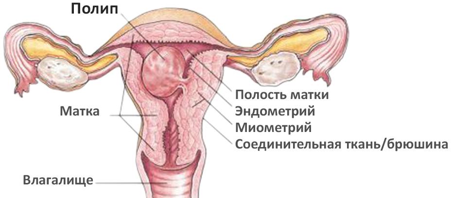 pripuhlostna-stenki-vnutri-vlagalisha-mozhet-otchegopoyavitsya