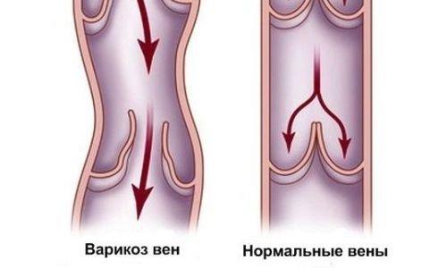 Как лечить вены и сосуды на ногах