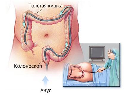фото колоноскопия кишечника