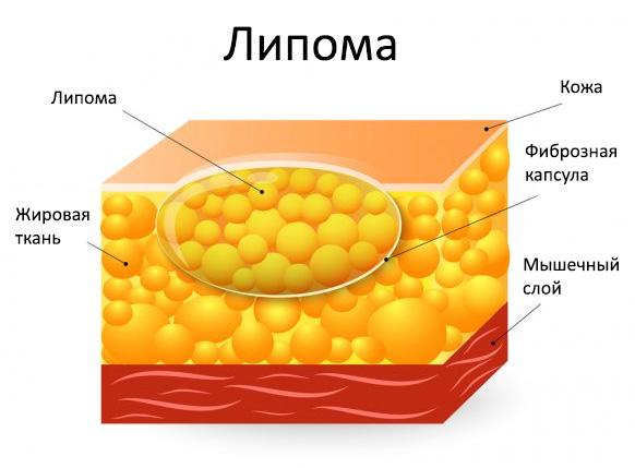 Удаление миомы матки виды операции реабилитация последующая беременность