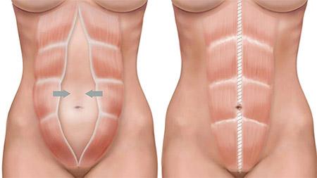 Операции при диастазе прямых мышц живота